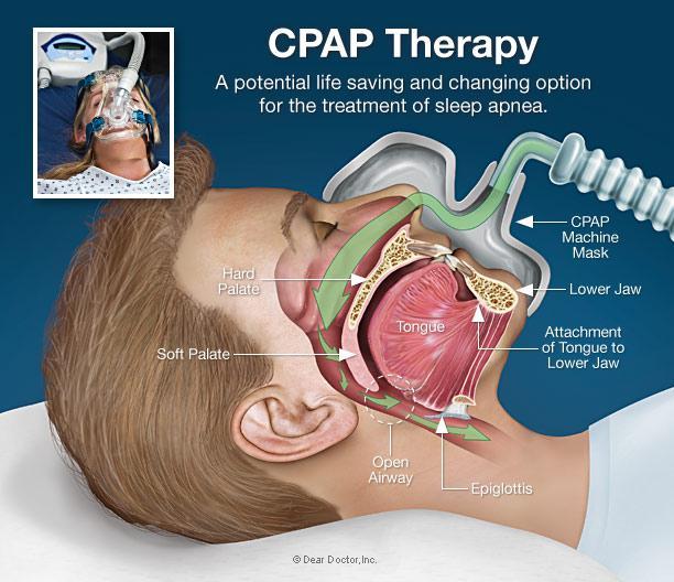 https://staticseekingalpha.a.ssl.fastly.net/uploads/2014/8/12/saupload_cpap-therapy1.jpg